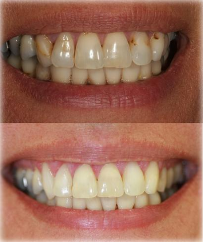 cosmetic dentistry west auckland, cosmetic dental treatment